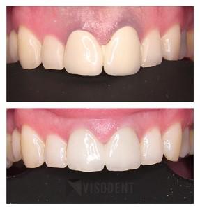 Bezmetalne zubne krunice