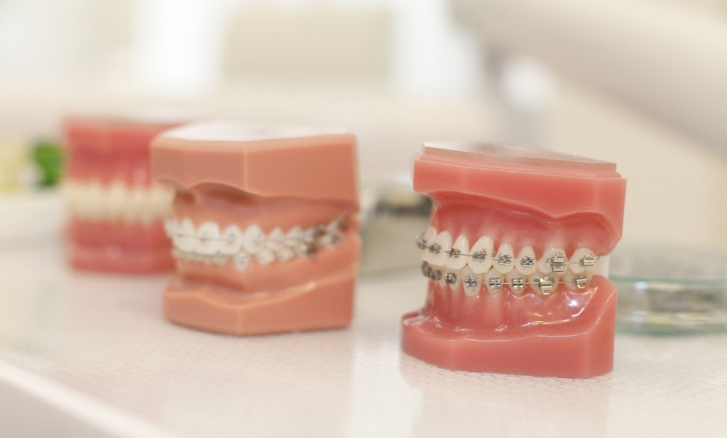 Fiksni aparatić za zube