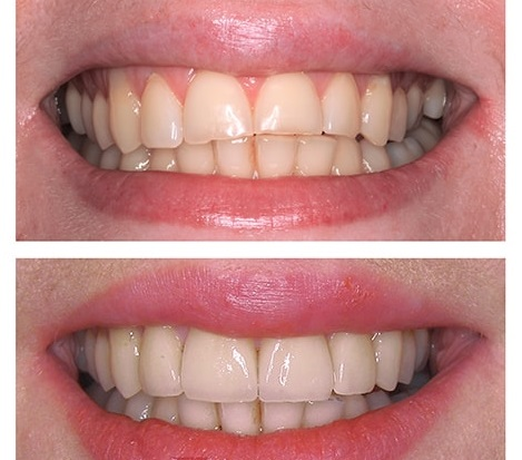 ljuskice-za-zube-veneers