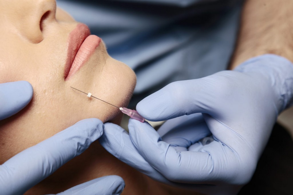 Dermapen terapija mikroiglicama