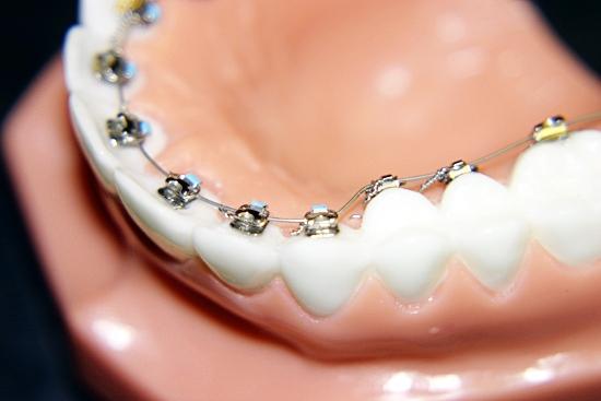 Lingvalni aparatić za zube