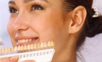 Estetika zubi