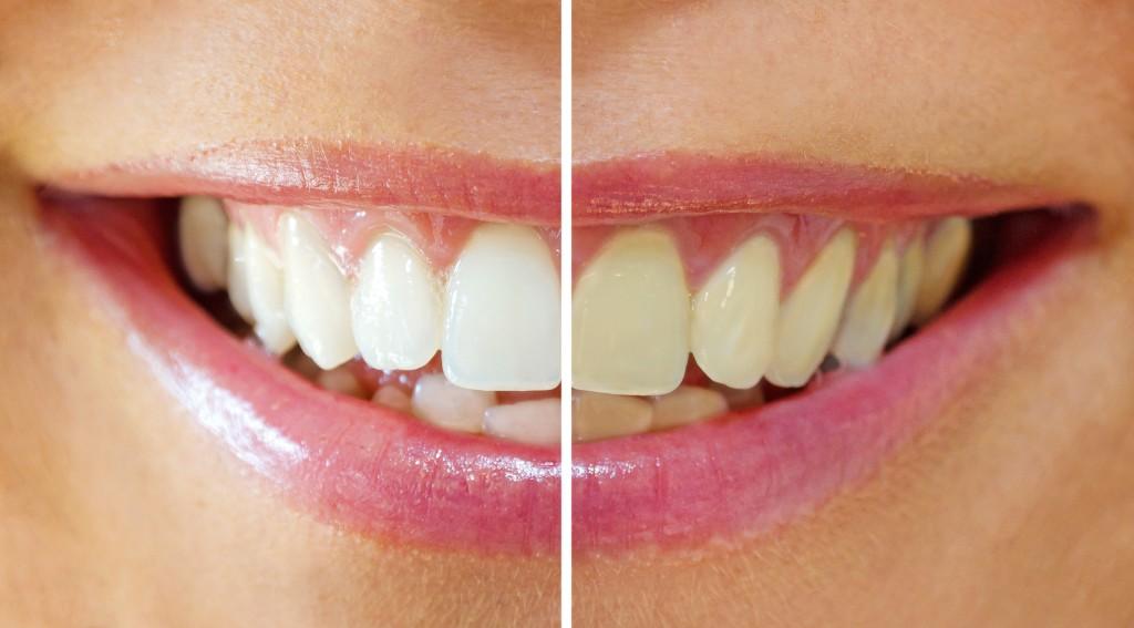izbjeljivanje-zubi