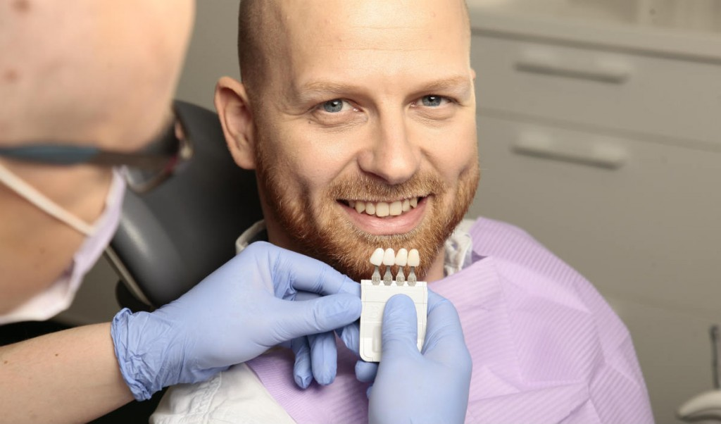 zubne-ljuskice