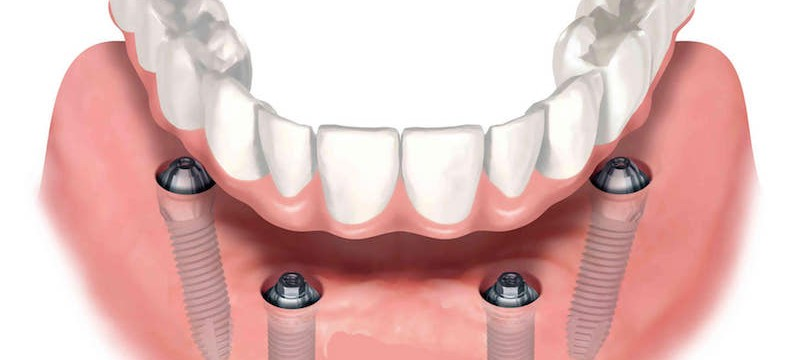 visodent-all-on-4-zubni-implantati