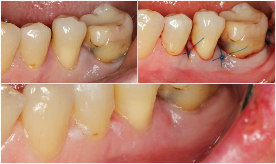 Parodontna kirurgija prije i poslije
