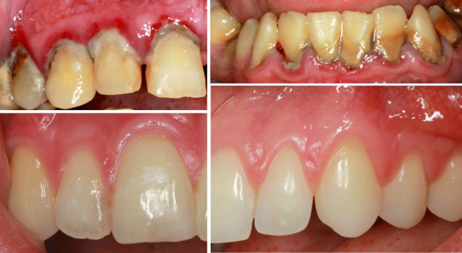 Terapija parodontitisa prije i poslije